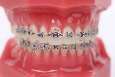 GOODMAN TORQUING SPRING placed to gain lingual or labial root torque alignment