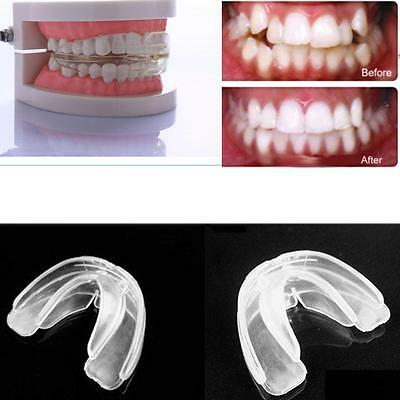 New Straight Teeth System for Adult retainer to correct orthodontic problems
