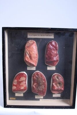Wax model of lung diseases