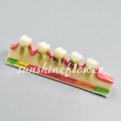 Dental Lab Periodontal Disease Assort Tooth Typodont Study Teaching Teeth Model