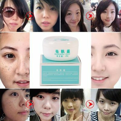 Ladies Whitening Cream Remove Freckle Melanin Peels Dark Spot Face Facial Skin