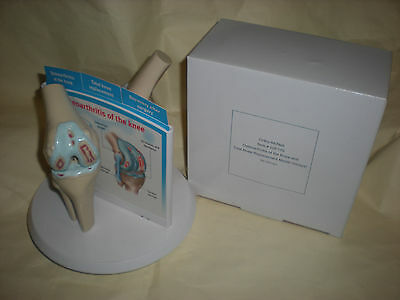 Ortho-McNeil ANATOMICAL KNEE REPLACEMENT JOINT MEDICAL DISPLAY OSTEOARTHRITIS