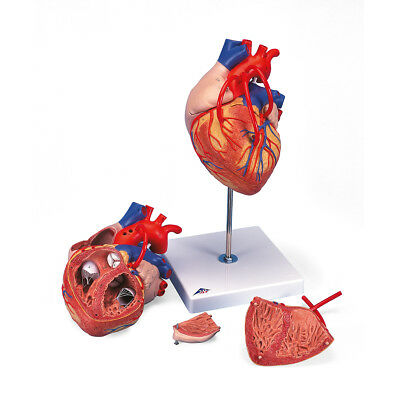 Heart w/ Bypass 2x life-size 4-part  1 EA