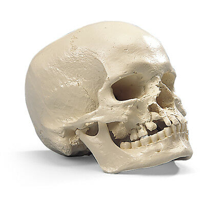 Skull w/ Cleft Jaw w/ Cleft Palate and Maxilla  1 EA
