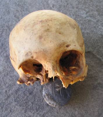Authentic Antique Medical Real Human Skull FOR DISPLAY or Dental Studies Anatomy