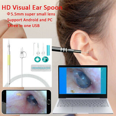 3 in1 Ear Cleaning USB Endoscopio 5.5mm Visual Ear Cucchiaio Otoscopio da 1.3MP