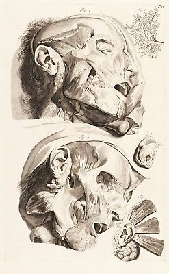 "Govard Bidloo : ""Flayed Human Head (Table 12)"" (1685) — Giclee Fine Art Print"