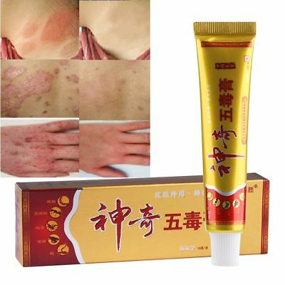 Ungüento de Psoriasis Dermatitis Herbal China Prurito Antibacterian Anti-picazón