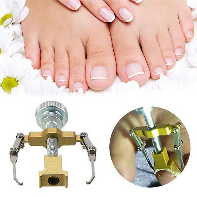 Professional Ingrown Toenail Correction Tool Manicure Clipper Pedicure Care Kit