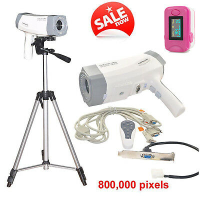 Portable Digital Zoom SONY CCD Color Video Camera Electronic Colposcope + Tripod