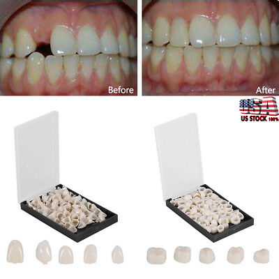 50Pcs  Dental Temporary Crown Veneers Material Anterior Front Back Molar Teeth
