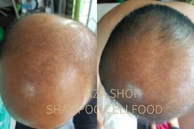 The BEST HAIR LOSS Regrowth Treatment For Men and Women ingredien 2 Month Supply