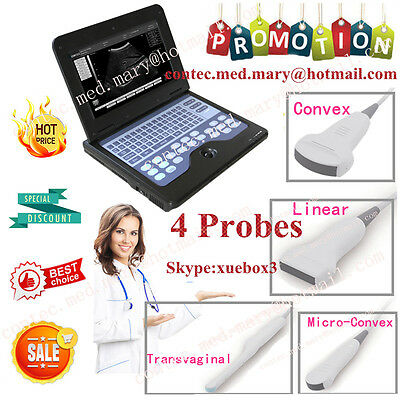 hot Portable Ultrasound Scanner Laptop Machine Convex/Cardiac/Linear/Tranvaginal