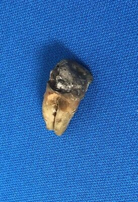 Real Human Tooth Silver Filling Scrap Curiosity Oddity Macabre Witchcraft (2C)