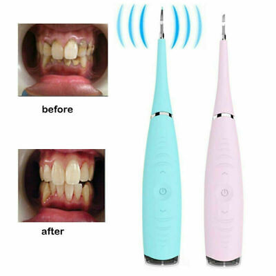 Electric Sonic Dental Removal Scaler Tooth Stains Tartar Cleaning Tool