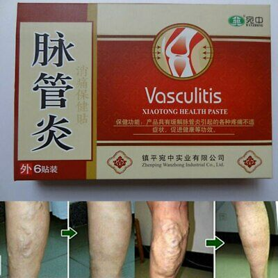 24 Pcs Herbal Patches Spider Veins Varicose Treatment Vasculitis Plaster Patch