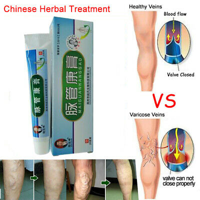 Natural Solution Medical Herbal Patches Ointment Patch Varicose Veins Vasculitis