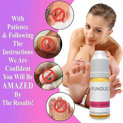 NAIL FUNGUS ZAP™ Fungal Nail Treatment Cure Stops Nail Fungus UK Best Seller