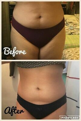 Diet Pills That Work Fast Weight Loss Extreme Appetite Suppressant LOOSE FAT