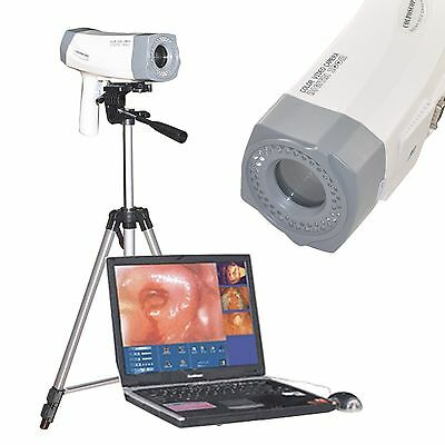 Digital Video Electronic Colposcope+ SONY Camera Software 800,000 pixels +Tripod