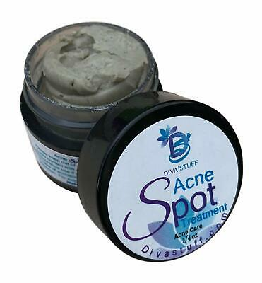 Diva Stuff Spot Acne Treatment - Helps Reduce Inflammation and Fights Bacteria