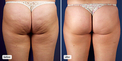 Anti Cellulite Cream Firming Shaping Fat Burning Body Slimming Weight loss FAST