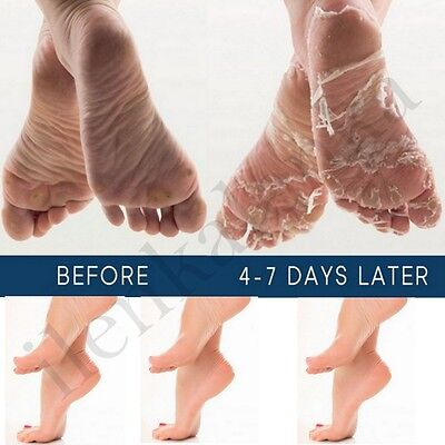 Foot Mask Exfoliating Feet Foot Care Hard Skin Remover Baby Foot UK