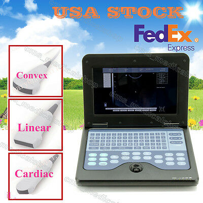 Notebook Diagnostic Machine B Ultrasound Scanner Ultrasonic scanner with 3 probe