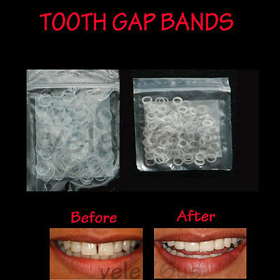 "TOOTH GAP BANDS -- 3.5 OZ ORTHODONTIC BANDS -3/16"" - Instructions Included"