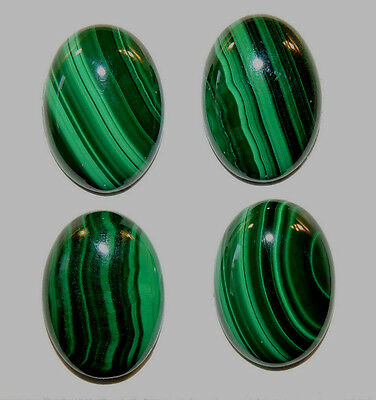Malachite 13x18mm Cabochons with 5mm dome Set of 4 from Africa (11727)