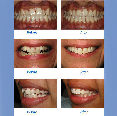 Straight Teeth System for Teens&Adults to correct bite and straighten teeth