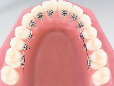 Case of Brackets 5-5 Orthodontic LINGUAL METAL BRACKET Mini Type ORTHODENTALUSA