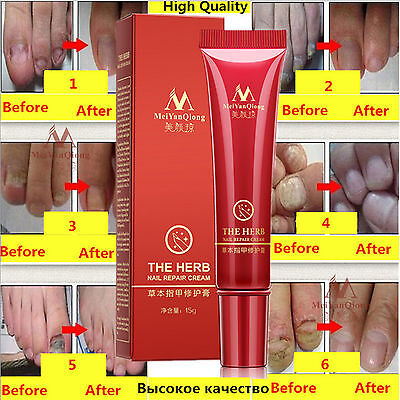 Anti Fungal Nail Treatment Cream Toe Nail Finger Fungus Onychomycosis Remove