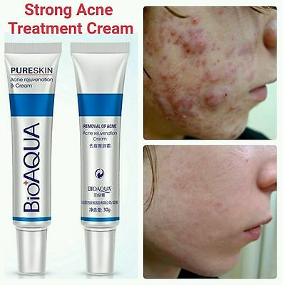 Acne Treatment Cream Acne Scar Removal Cream Blemish Spots Stretch Marks BIOAQUA