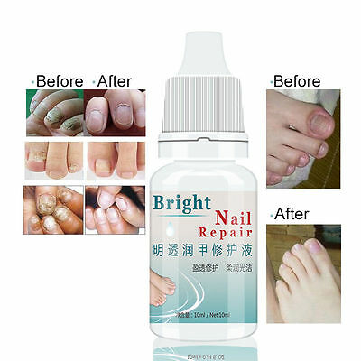 Anti-Fungal Infection Tinea Unguium Nail ToeCare Treatment Lacquer Solution 10ML