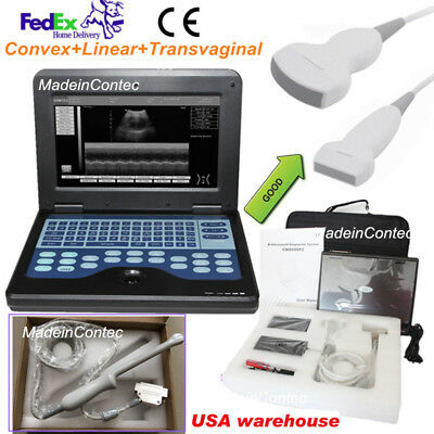 Portable Notebook Ultrasound Ultrasonic Scanner Convex+Linear+Transvaginal Probe