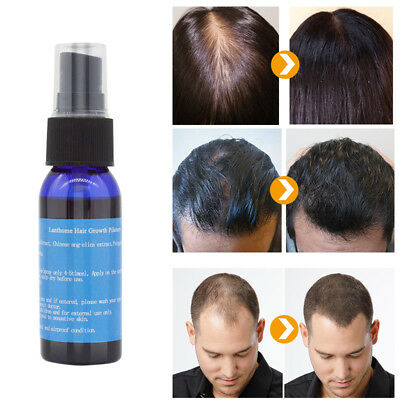 Fast Hair Growth Dense Regrowth Essence Treatment Women Men Anti Loss Innovation