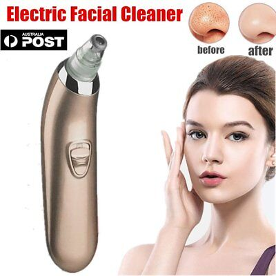 Electric Facial Pore Suction Cleaner Blackhead Removal Acne Pore Cleanser FK