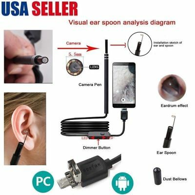 Health Care Tool Ear Pick Wax Remover Cleaner scope Endoscope windows PC USB