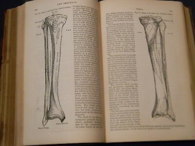 1870 - GRAY'S ANATOMY - ANATOMY DESCRIPTIVE AND SURGICAL by Henry Gray