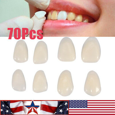 70Pcs/Bag Teeth Veneers Resin Anterior Upper Temporary Crown Dental Oral Care US