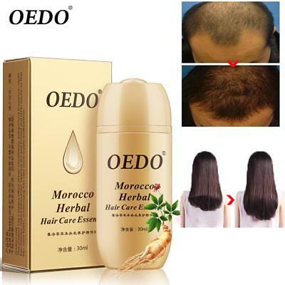 OEDO Morocco Herbal Hair Care Essence Treatment Men And Women Loss Fast regrowth