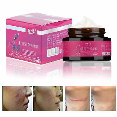 Acne Treatment Stretch Marks Repair Snake Essence Ointment Scar Remove Cream