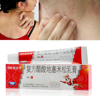 Hot 999 PiYanPing Compound Dexamethasone Acetate Cream Relieve Skin Itching 20g