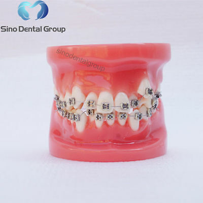 1X Dental Typodont For Trainning Orthodontic Teeth Model With Braces Red