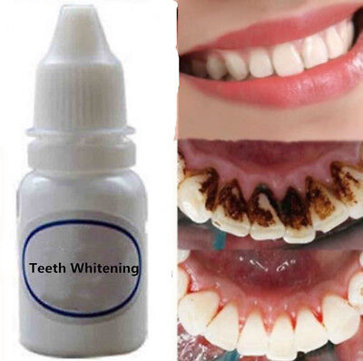 10ml Teeth Tooth Whitening Mouth Cleaning Liquid Whitening Dental Tool Oral Care