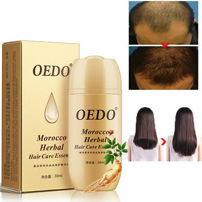 OEDO Morocco Herbal Hair Care Essence Loss Treatment For Men Women Fast regrowth