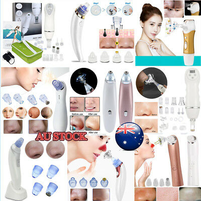 Comedo Microdermabrasion Vacuum Suction Pore Blackhead Remover Cleaner Machine