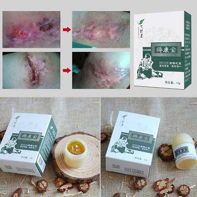 Chinese Herbal Psoriasis Dermatitis Eczema Pruritus Psoriasis Cream Ointment