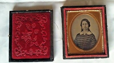 CROSS EYED Young Woman, Ambrotype, Unusual, Medical Collector, Nice, NO RESERVE